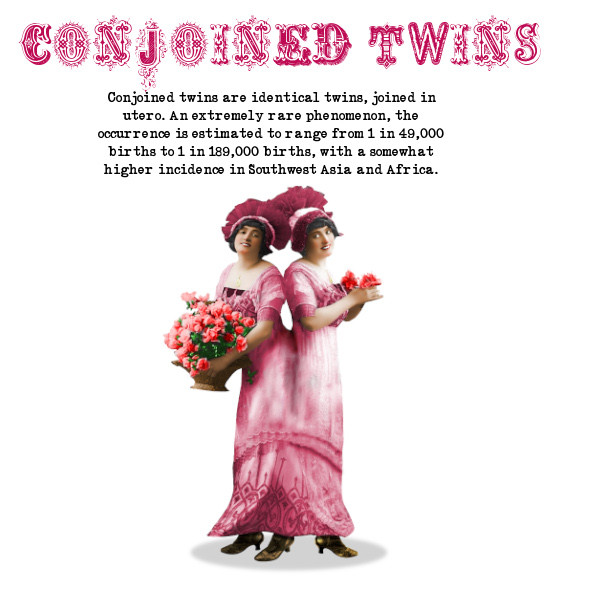 conjoined twins vintage